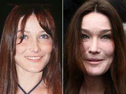 http://www.hitparades.it/thumbs/botox-carla-bruni2.jpg